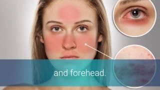 Rosacea Bumps On Nose
