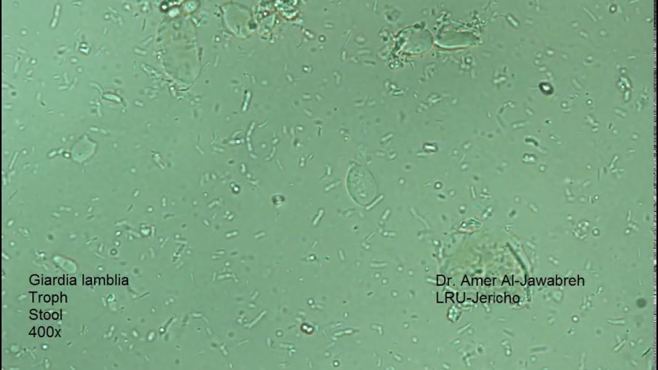giardia egy tál vízben fuzárium toxinok