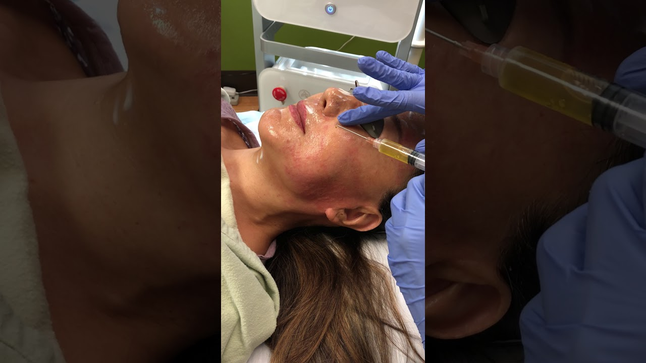 F-PRP after the Vivace Treatment - Avalon Laser - Dr  Reza Tirgari