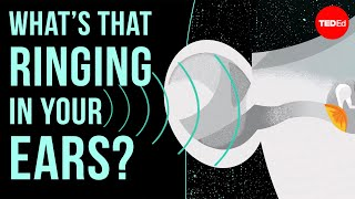 Whats that ringing in your ears? - Marc Fagelson