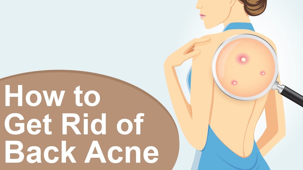 How to Get Rid of Back Acne Naturally at Home
