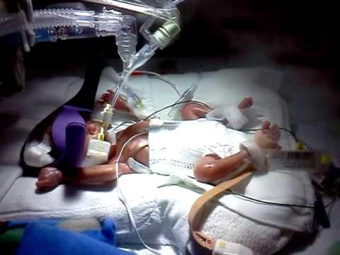 Micro Preemie 22 Weeks Old Nathan Youtube