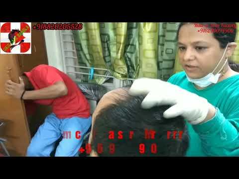 How Platelet-Rich Plasma Works - PRP in Kolkata - Prp Treatment For Hair Loss