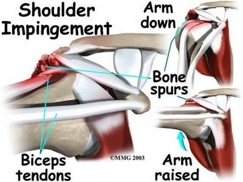 Shoulder Impingement Signs And Symptoms Youtube