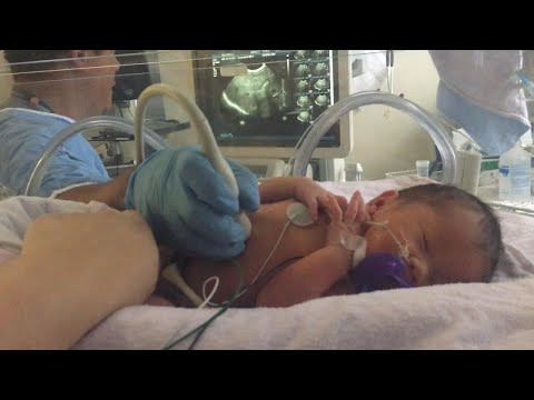 Doctors Repair Baby's Spine While Still in Mother's Womb