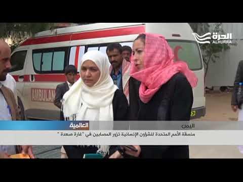 منسقة الأمم المتحدة للشؤون الإنسانية تزور المصابين في -غارة صعدة -  - 22:22-2018 / 8 / 14
