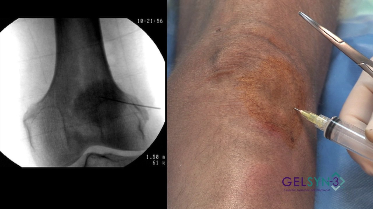 Inferior Lateral Extended Knee (Gelsyn-3)