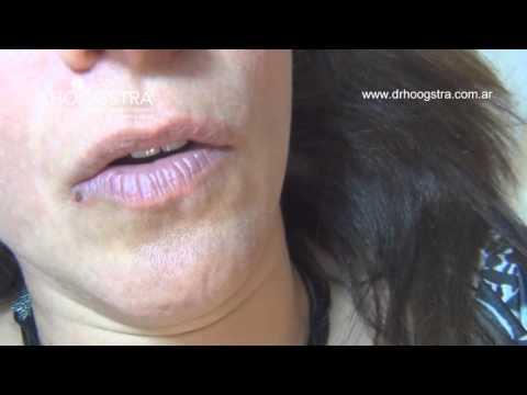 Lesión vascular del labio (15101)