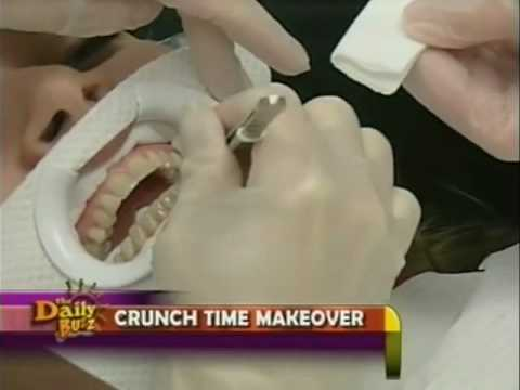 Orlando Cosmetic Dentist Dr Pitts Performs Crunchtime Makeover For FOX TV