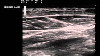 Plantar fascia fibromatosis ultrasound (Ledderhose disease)