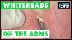 hqdefault - Whitehead Pimples On Arms
