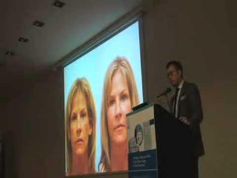 Fat Grafting vs. Implants, VII Intl. Congress of Facial Plastic Surgery, May 9, 2012, Rome, Italy