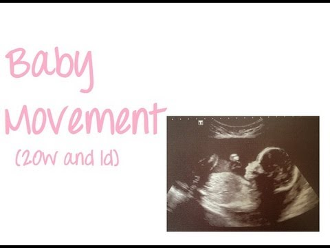 Fetal Movement - 20 Weeks 1 Day