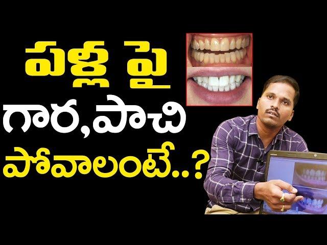 Dental Health Tips | Dr.Vishnu vardhan | Dentist | గార పట్టిన పళ్లను ఇలా శుభ్రం చేసుకోవచ్చు