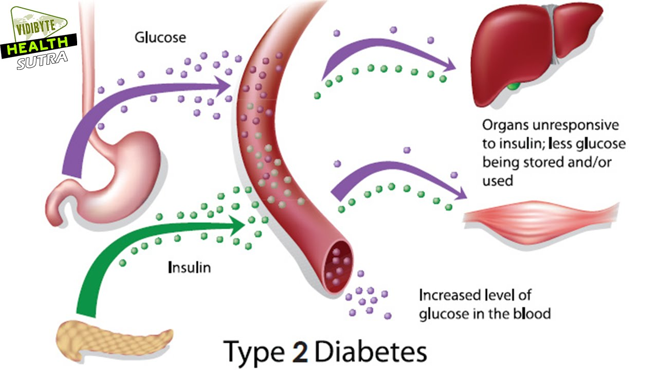 type 2 diabetes symptoms - youtube, Human Body