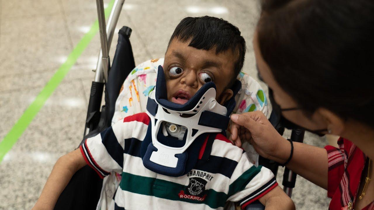'크루존 증후군' 아웅의 첫 번째 숨