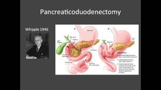 MUSC GI Surgery:  surgical options for chronic pancreatitis