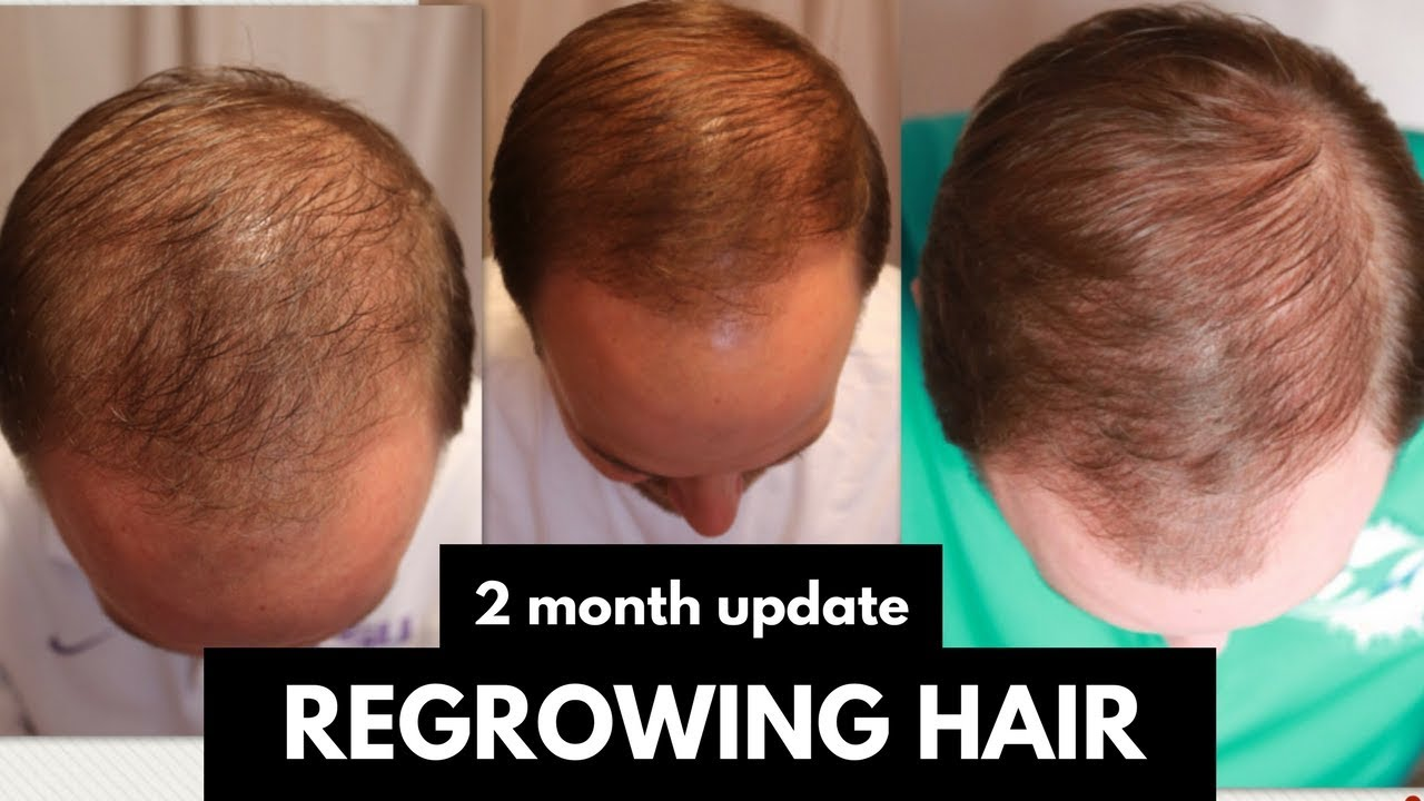 Regrowing Hair My Husband S 2 Month Progress Update With Monat Youtube