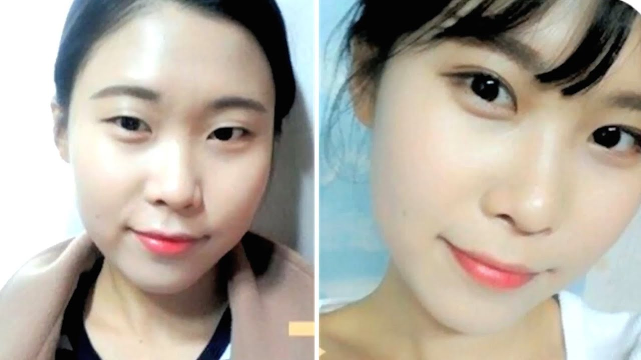 KOREAN DOUBLE EYELID SURGERY BEFORE AFTER - YouTube