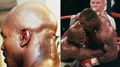 Mike Tyson beißt bei Evander Holyfield ein Stück des Ohres ab