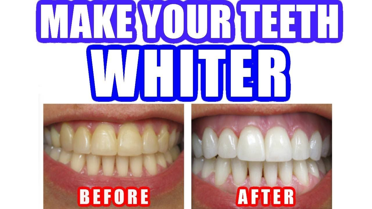 Best Way To Naturally Whiten Your Teeth