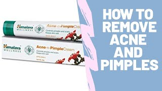 REVIEW-HIMALAYA ACNE N PIMPLE CREAM| Best cream for pimples | luvs reviews | in hindi