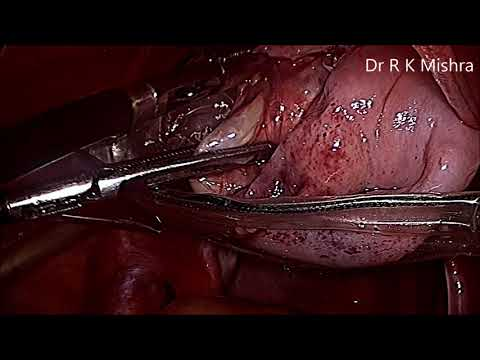 torted-ovarian-dermoid-cyst-in-7-year-old-girl