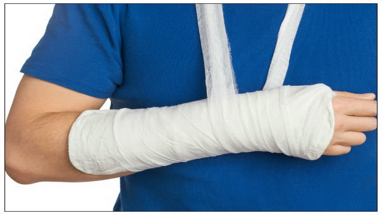 How to Deal With a Broken Bone Emergency