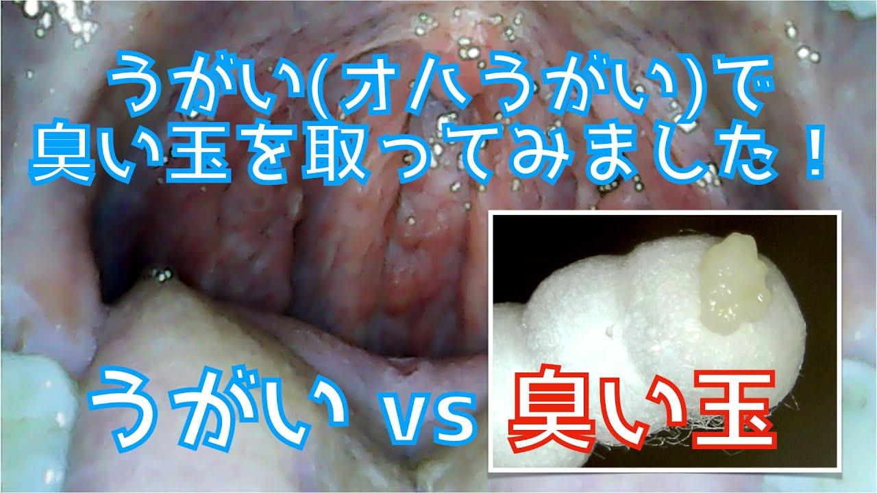 臭い玉 うがい 取れる 膿栓対策は耳鼻科に行く!膿栓の予防はうがいが簡単!