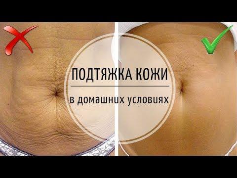 Как вернуть тонус коже живота после родов