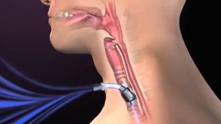 Complicações clínicas da Traqueostomia_Clinical Complications of Tracheostomy
