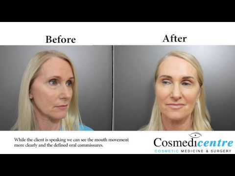 Oral Commissures Treatment Before And After By Cosmedicentre Youtube