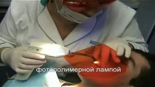 видео Установка сапфировых брекетов. Установика невидимых (прозрачных) брекетов