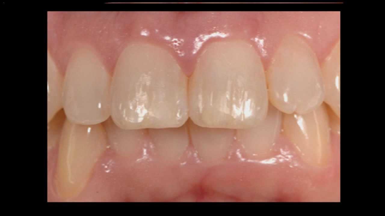 Cosmetic Porcelain Veneers to Close Tooth Gap - Oasis Dental Milton Cosmetic Dentist - 905-876-2747