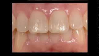 Cosmetic Filling to Close Tooth Gap (Case 1)- Oasis Dental Milton Cosmetic Dentist - 905-876-2747 Thumbnail