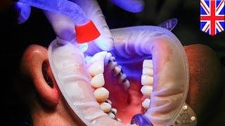 New natural tooth repair method may one day replace fillings at the dentist - TomoNews