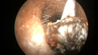 EAR WAX IMPACTED DIFFICULT TO REMOVE IN THE FIRST SITTING HD QUALITY