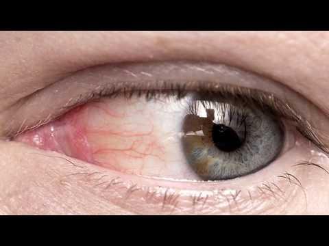 Расширены сосуды в глазах лечение отзывы