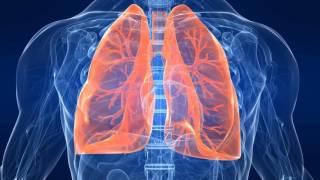 видео Признаки воспаления лёгких у взрослых, причины, это заболевание может