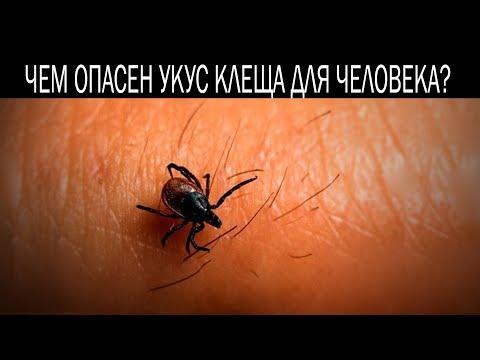 видео: Чем опасен укус клеща для человека