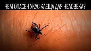 Чем опасен укус клеща для человека