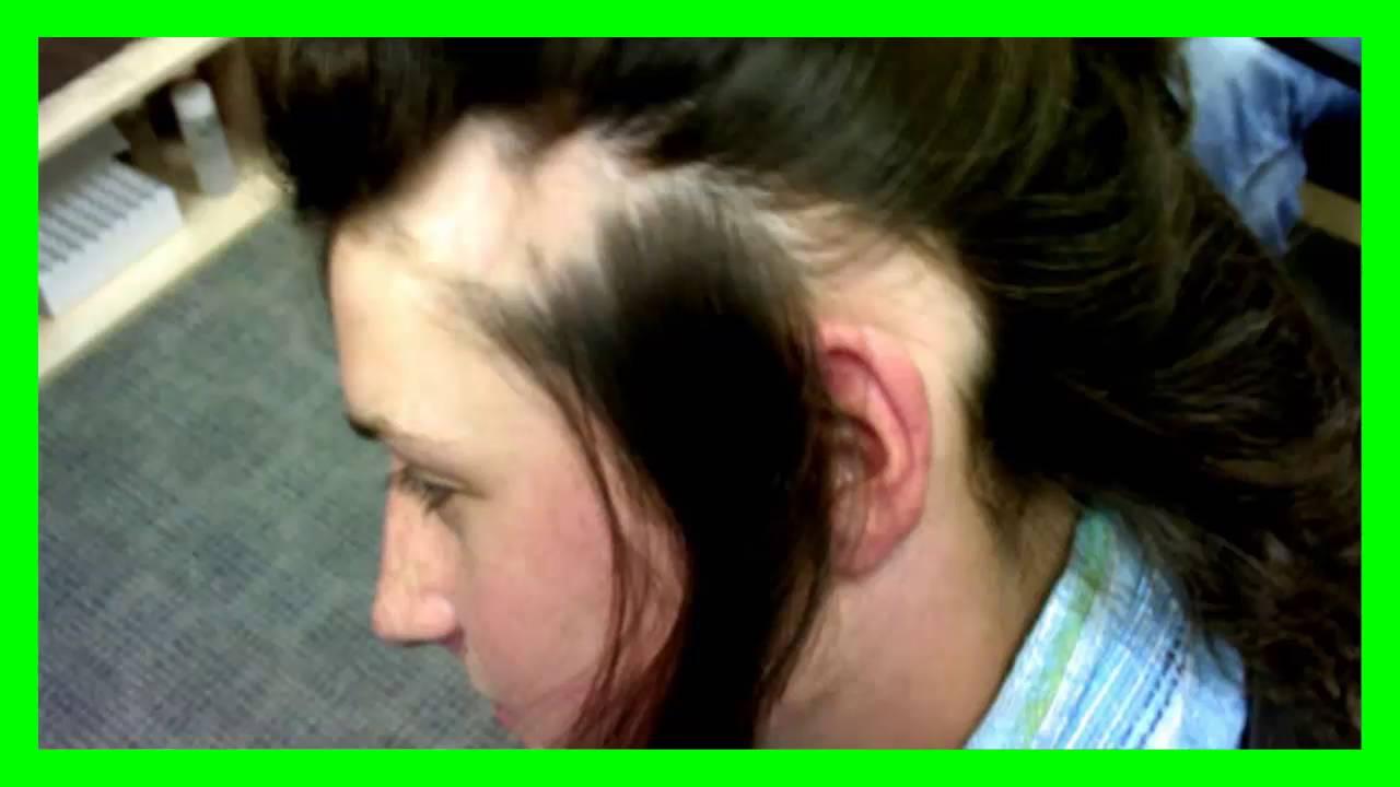 Como aplicar en el cabello la sabila