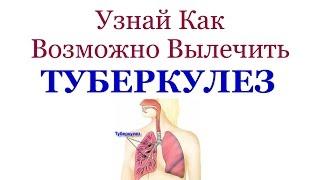 Как Вылечить Туберкулез - Реальный Опыт!