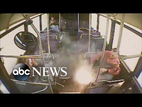 E-Cigarette Explodes: Man Suffers 3rd-Degree Burns