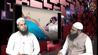 #Rubaru: Maulana Adil Qasmi Talking About #Hijama (#Cupping therapy) benefits: