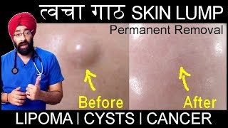 Permanently Remove SKIN LUMP | त्वचा गाठ | It can be LIPOMA, CYSTS, CANCER | in Hindi | Dr.Education