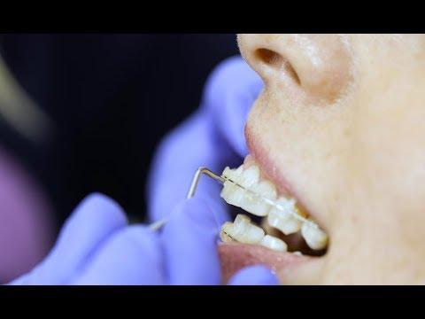 จัดฟัน ถอดเครื่องมือจัดฟัน (Getting Braces Off)