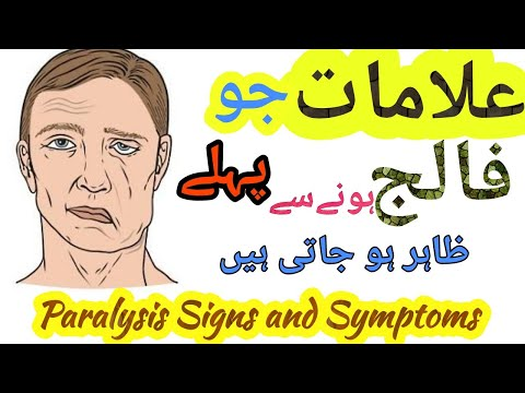 Falij Ki Alamat In Urdu | Falij Ka Behtreen Ilaj