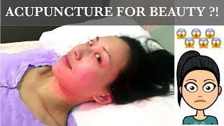 What It's Like to Get Facial Acupuncture