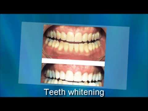 Tooth Whitening Austin Tx 512 273 3533 Youtube